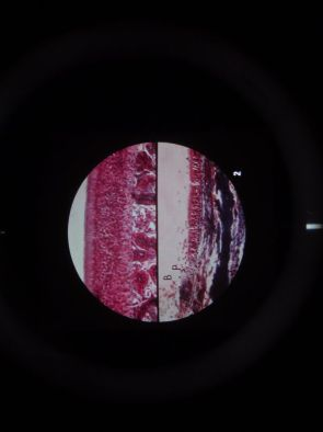 Microslide Drug Abuse Under Microscope (Pk10)